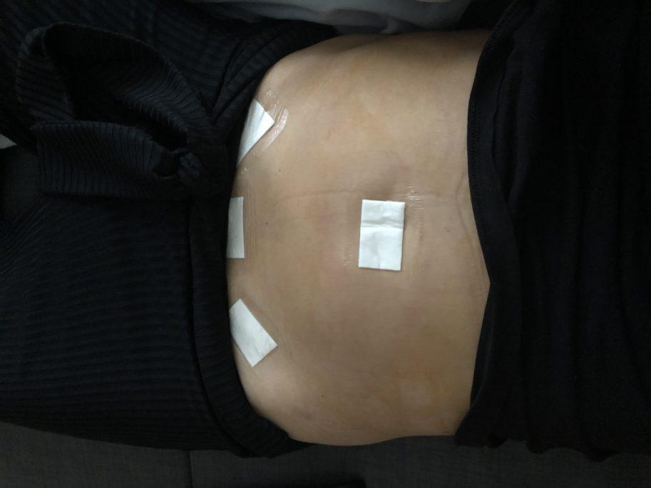 pansements coelioscopie laparoscopie